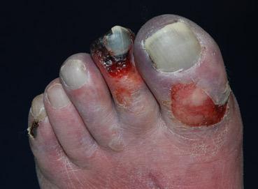 pijnlijke voeten diabetes