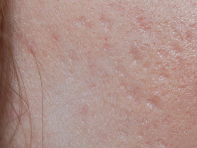 dermatoloog acne littekens
