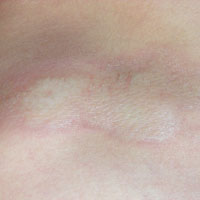 Witte vlekken huid jeuk