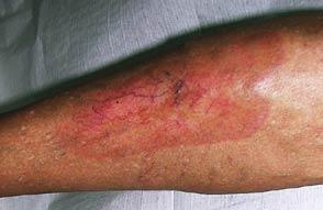 foto allergisch eczeem