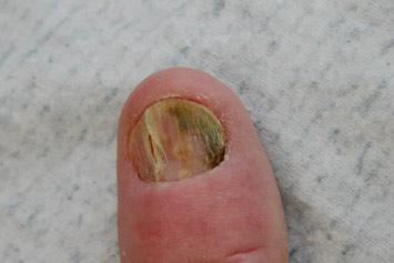 Psoriasis Van De Nagels | Huidinfo.nl | Informatiefolder Van De Dermatoloog