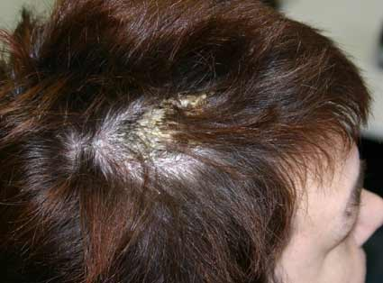 Scabies of the Scalp Pictures http://beauty-faq.com/Scalp.php