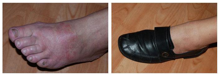 contact allergisch eczeem leer schoen voet