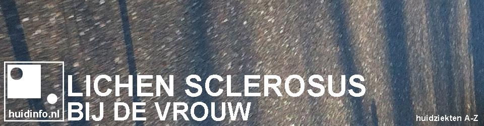 lichen sclerosus vrouw vulva