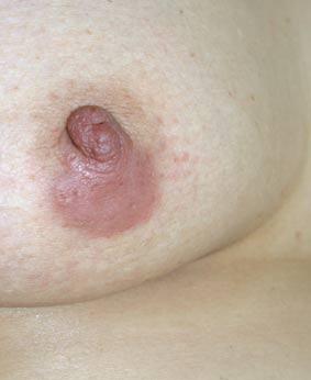 lymfocytoma teek lyme