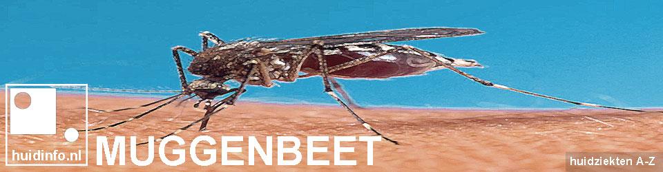 muggenbeet mug steek