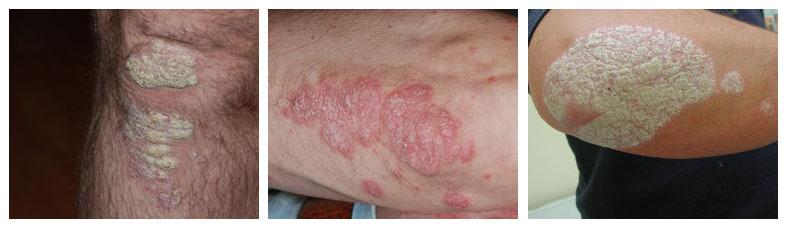 psoriasis vulgaris overzicht