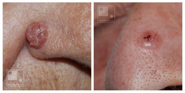 basaalcelcarcinoom huidkanker nodulair