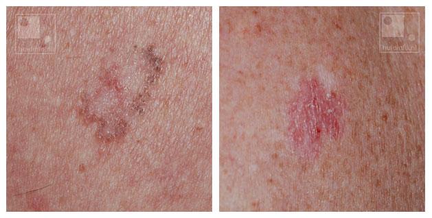 basaalcelcarcinoom huidkanker oppervlakkig