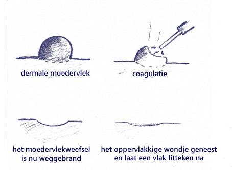 coagulatie (wegbranden)