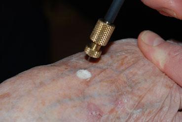 stikstof bevriezen cryotherapie