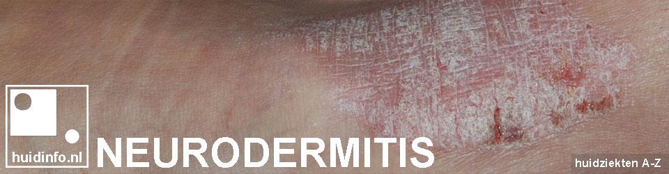neurodermitis lichen simplex chronicus