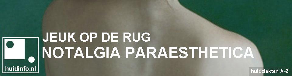 notalgia paraesthetica