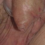 huidproblemen van de penis lichen sclerosus