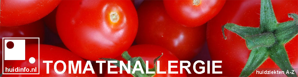 tomatenallergie allergie voor tomaat