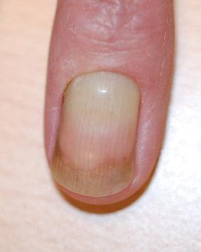gele nagel syndroom