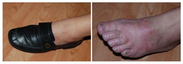 allergie voor chromaat leer schoen