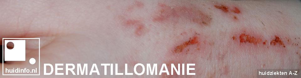 dermatillomanie