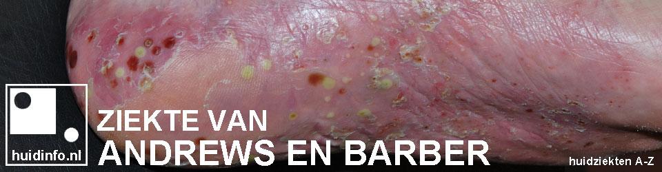 Andrews Barber psoriasis pustulosa palmoplantaris