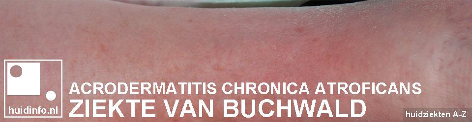 buchwald lyme acrodermatitis