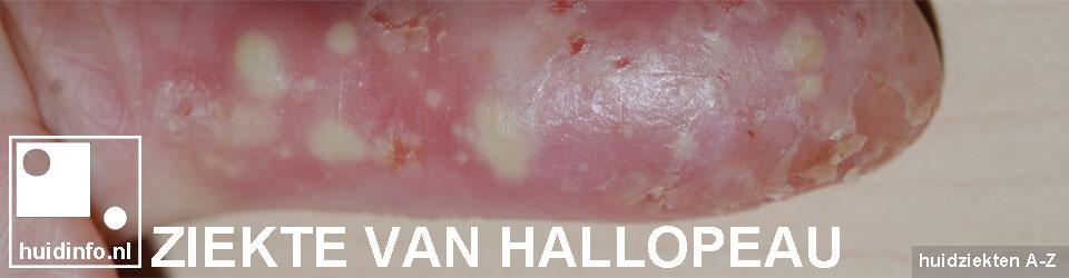Ziekte van Hallopeau psoriasis