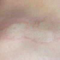 morfea, gelocaliseerde sclerodermie witte vlekken