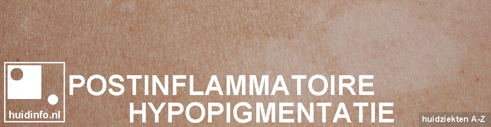 postinflammatoire hypopigmentatie
