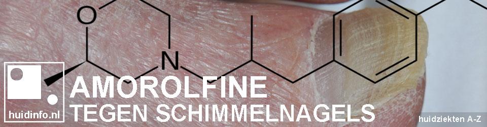 amorolfine schimmelnagels kalknagels