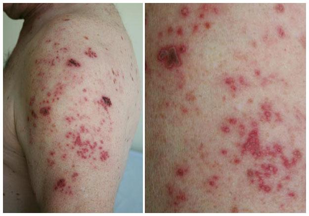 gordelroos herpes zoster