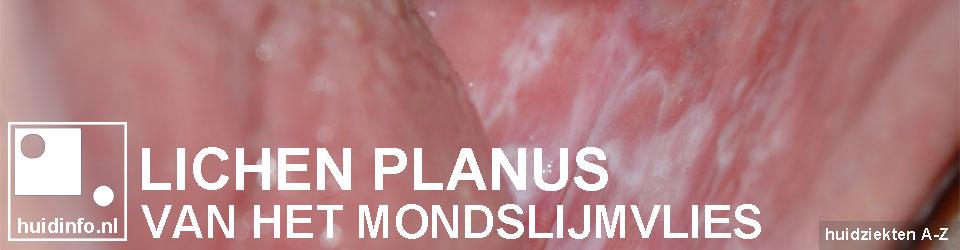 lichen planus van de mond