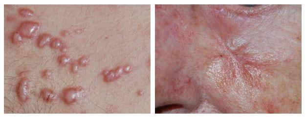 littekens behandeling