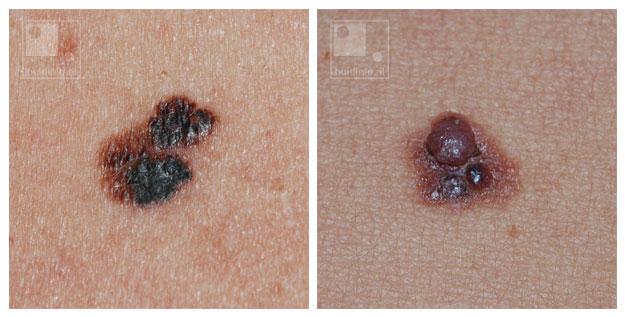 huidkanker melanoom