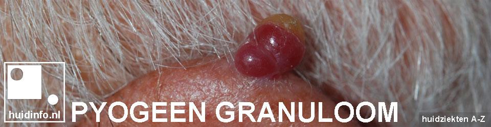 pyogeen granuloom