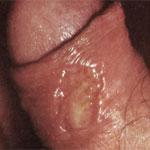 syfilis lues