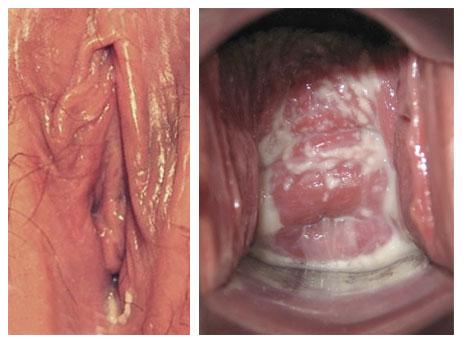vaginale ziektes