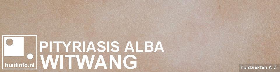 witwang pityriasis alba