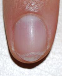 slijtende nagels gespleten nagels onychoschizia