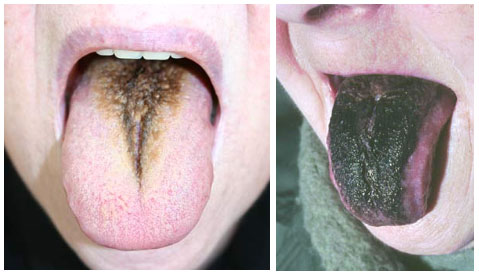 haartong black hairy tongue
