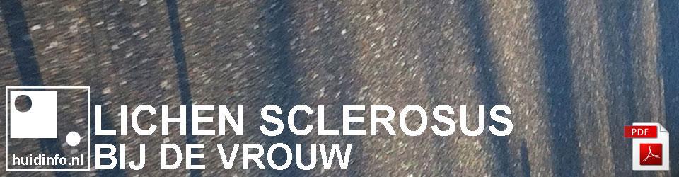 lichen sclerosus vulva vrouw