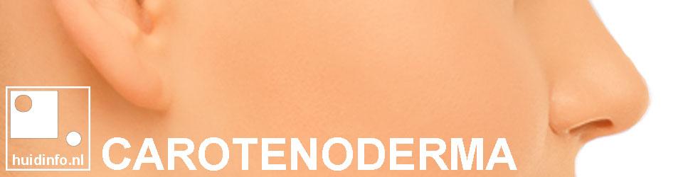 carotenoderma oranje huid worteltjes