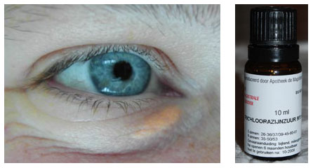 xanthelasma palpebrarum boterbril
