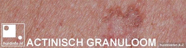actinisch granuloom