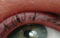 alopecia areata van de wimpers
