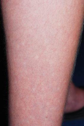hagelbenen hagelhuid bier spots angiospastische maculae