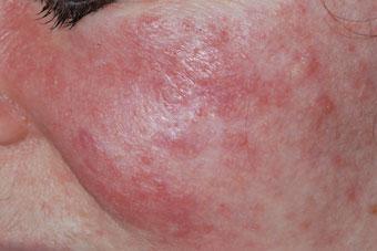 Morbihan Ziekte puistjes roodheid gezicht