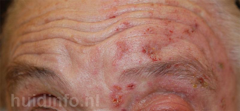 herpes zoster ophthalmicus, gordelroos in het gezicht
