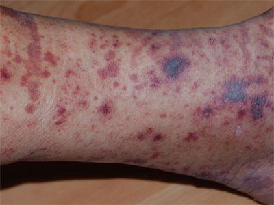 paarse vlekjes op huid