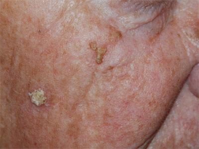actinische keratose ruwe plekken