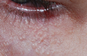 syringomen oogleden